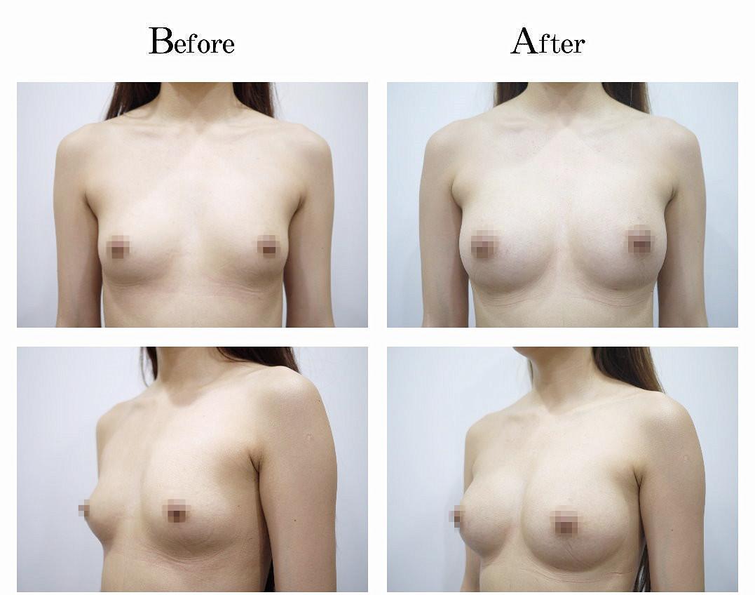 自體脂肪移植手術式目前廣受歡迎的整形手術項目之一,因萬採用的手術植體皆是來自於自身的脂肪,所以產生後遺症擊排斥的機率相當的低,手術風險也不高,所以有意進行身形雕塑的患者皆會採用自體脂肪移植的整形手術方式。